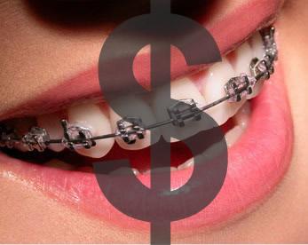 Dantų breketų kainos